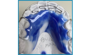 Blueberry Marbled retainer